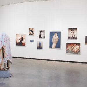 Blick in die Ausstellung Die innere Haut, Werke von Berlinde De Bruyckere und Lotte Reimann © Die Künstler